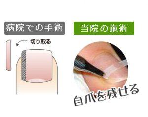 ふなき接骨院巻き爪8